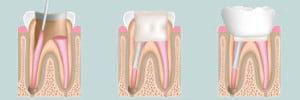 Endodontie Bucuresti, tratament de canal