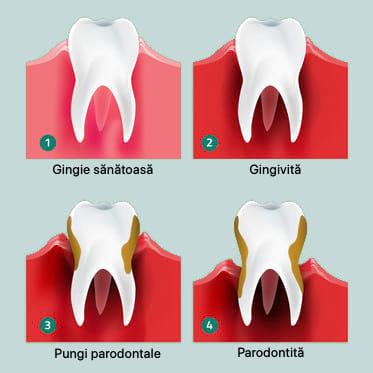 trataement gingivita, pungi parodontale, parodontita
