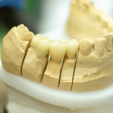 Proteze dentare, inlocuire, reparare dinte